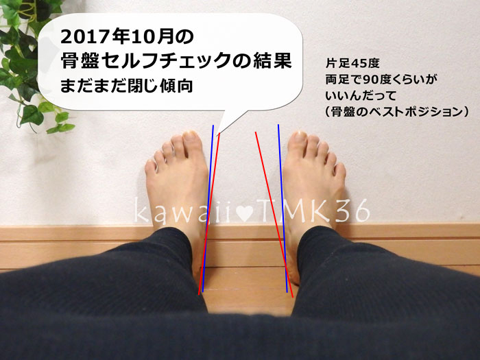 2017年10月の骨盤セルフチェックの結果(補助線つき)