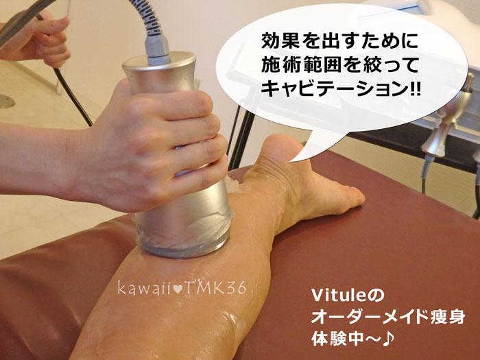 Vitule(ヴィトゥレ)のオーダーメイド痩身エステ体験中~(1)キャビテーション